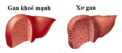 Một số bệnh gan thường gặp nhất hiện nay